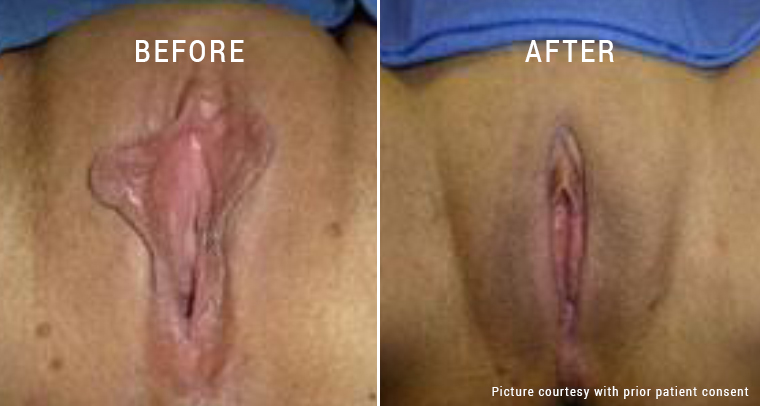 Labiaplasty - Be Your Best Version