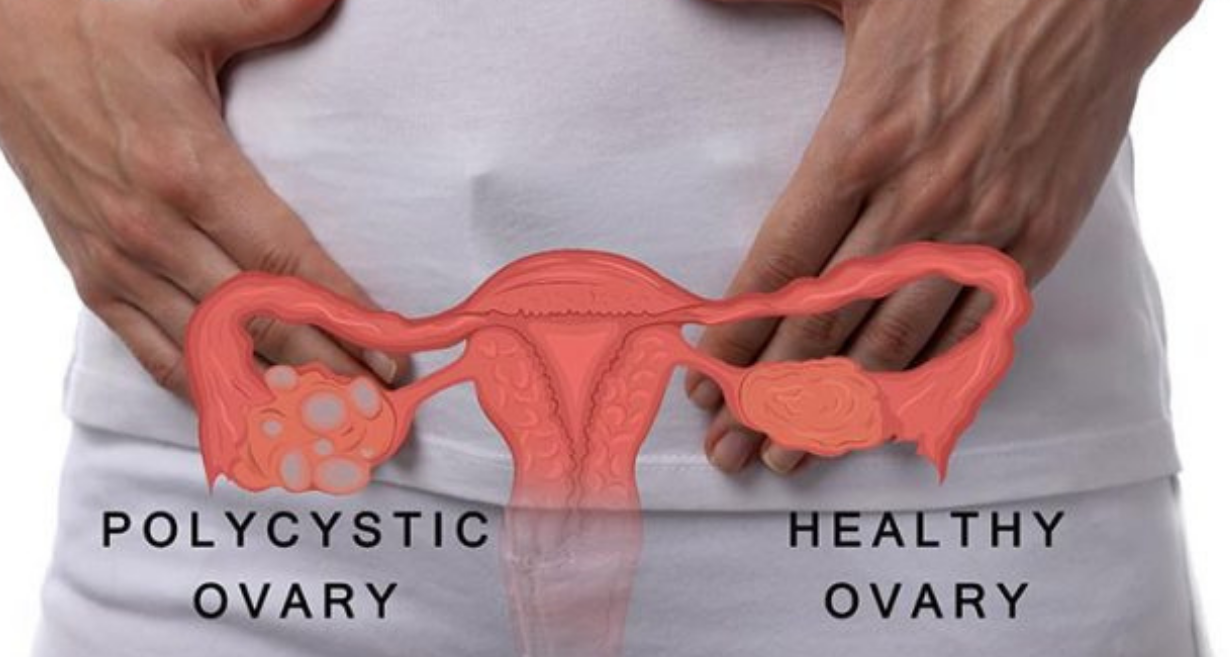 7 Symptoms Of Ovarian Cyst You Should Not Ignore